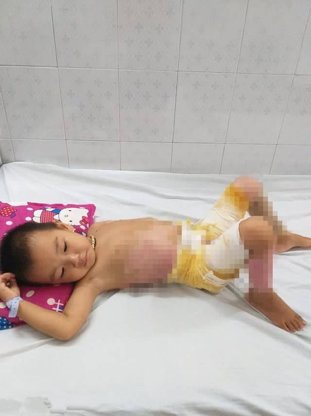 夫妻外出干活将4岁儿子交给母亲照看,结果孩子不幸掉进开水锅里