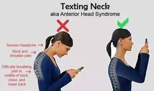 如何改善脖子前倾问题?几个动作远离乌龟颈,改善自身体态! 减脂食谱 第1张