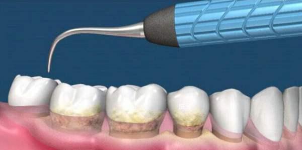 世卫组织:新冠疫情期间建议牙科诊所取消洗牙等常规服务