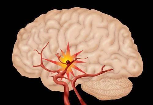 心脑血管疾病患者能不能经常吃驴肉火烧、肉夹馍?告诉你正确做法