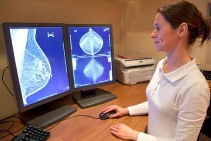 什么人应该定期做乳腺钼靶检查,钼靶的报告应该如何解读呢?