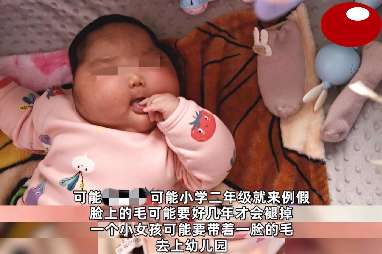 """""""大头娃娃""""再现,抑菌霜激素超标,致5个月女婴疯狂长胖长毛  第11张"""