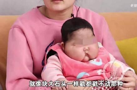 """震惊!抑菌霜含激素,五月幼儿变成""""大头娃娃""""  第1张"""