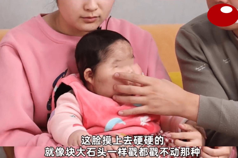 """""""大头娃娃""""再现,抑菌霜激素超标,致5个月女婴疯狂长胖长毛  第3张"""