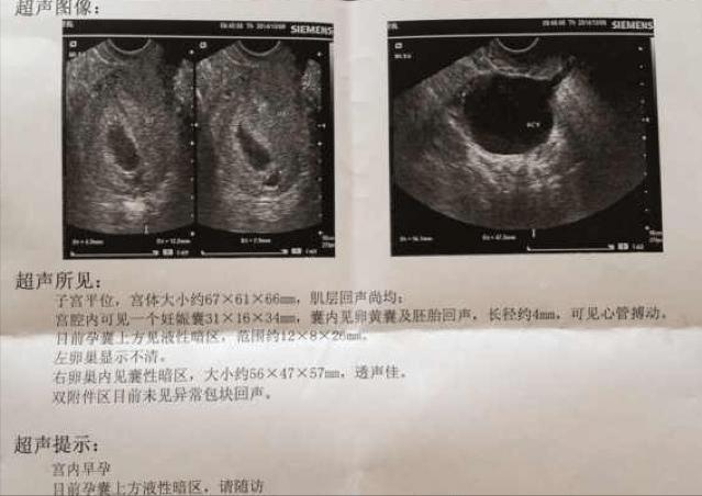 怀孕后孕囊发育很重要,多久才能看见孕囊?为什么说孕囊很重要?
