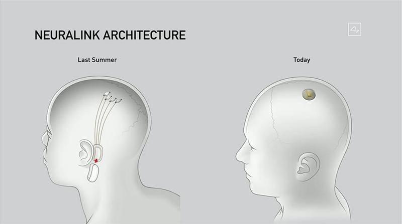 马斯克|马斯克推脑机接口芯片:安装不到1小时,植入活猪现场遛