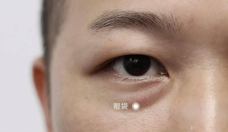 430年的马应龙放大招,八宝古方做的眼霜,眼纹淡了 ,买1送1_黑眼圈