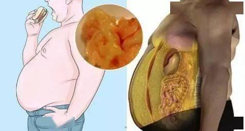 怎样减内脏脂肪?这个你一定要知道!