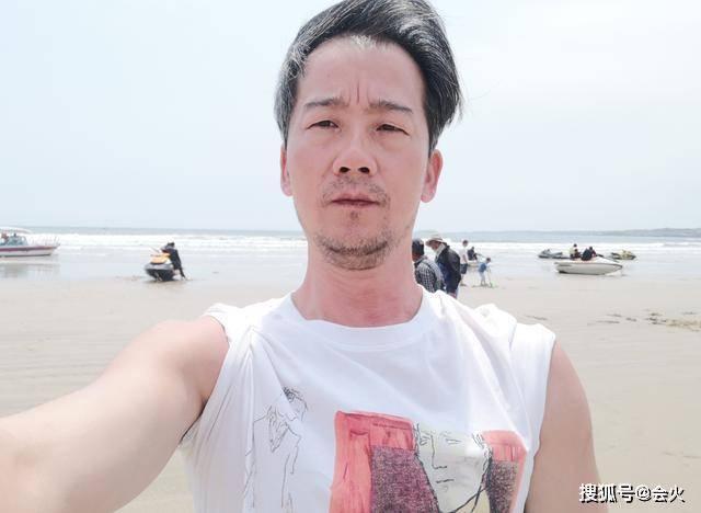 46歲男星靠演狗出名,現為變黑曬到背部脫皮,網友直呼看著都疼