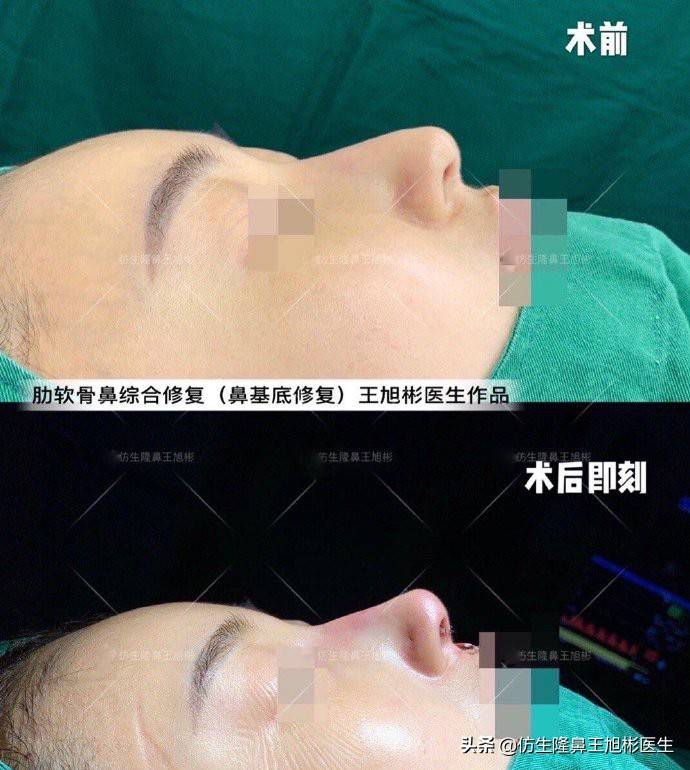 鼻头变小多少钱(缩小鼻子手术安全吗)插图(7)