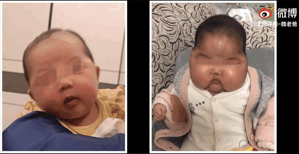 """婴儿霜检出激素 或致""""大头娃娃""""-家庭网"""