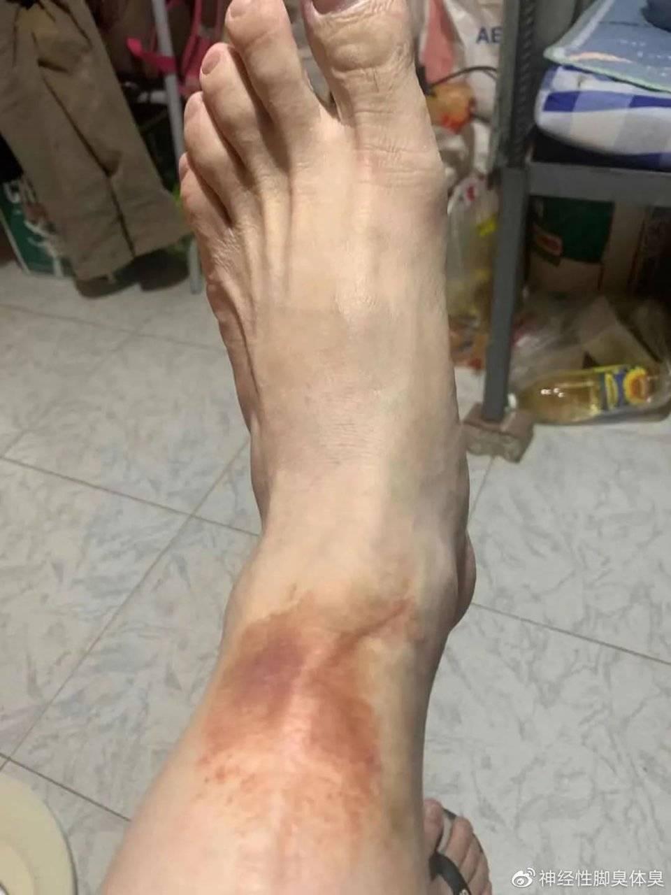 学生得神经性脚臭 神经性脚臭病因是什么