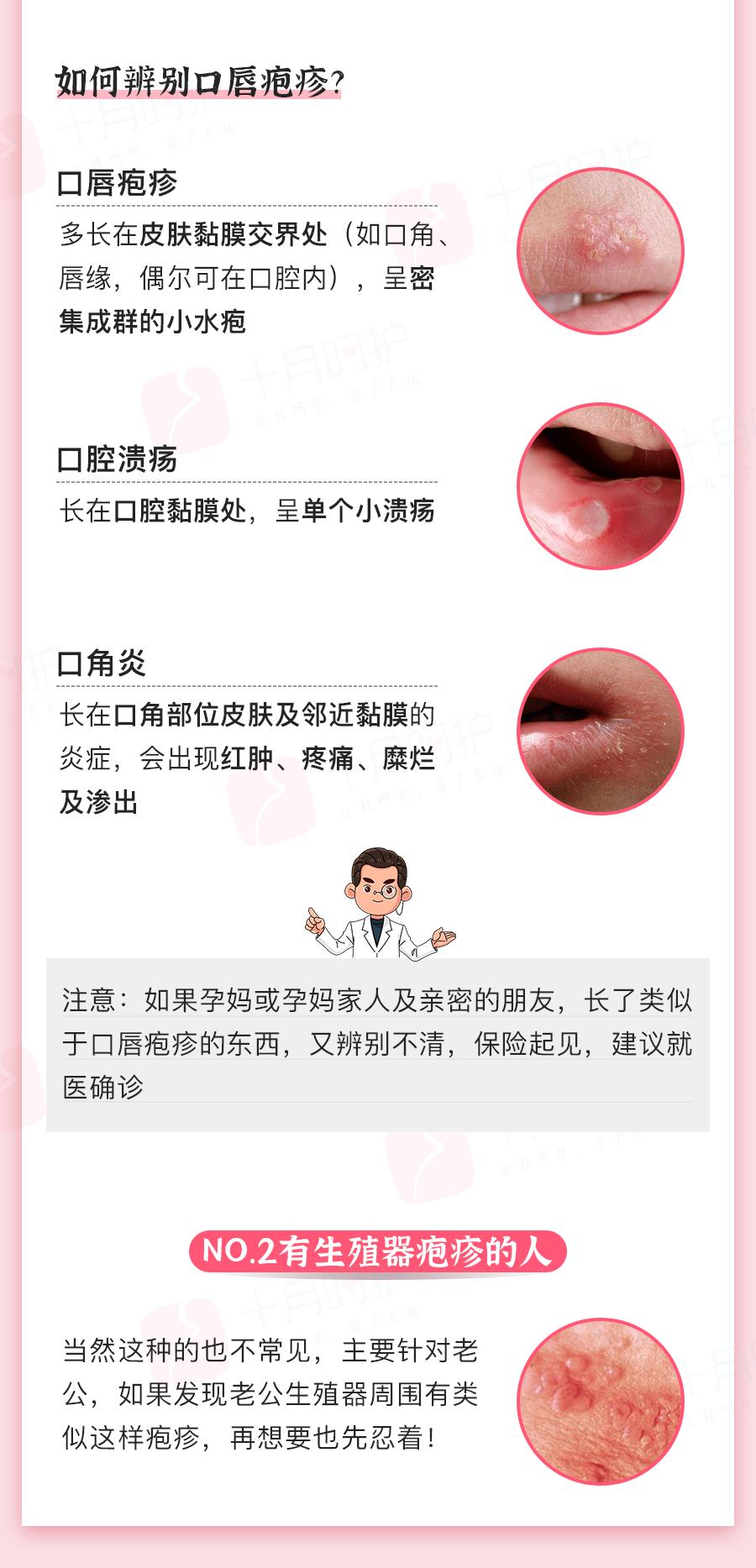 嘴上起泡是病毒感染,比HPV还危险!这个动作孕妈千万别做,会致畸