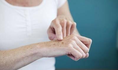 夏季如何預防老年斑爆發?最有效的夏季預防老年斑爆發的4個方法