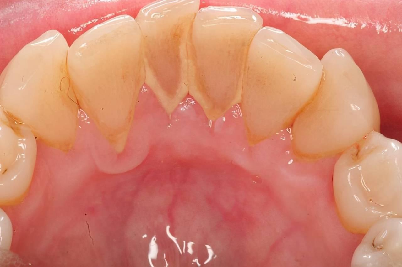 牙齿太脏\x20洗牙尴尬吗 洗牙就是害人的