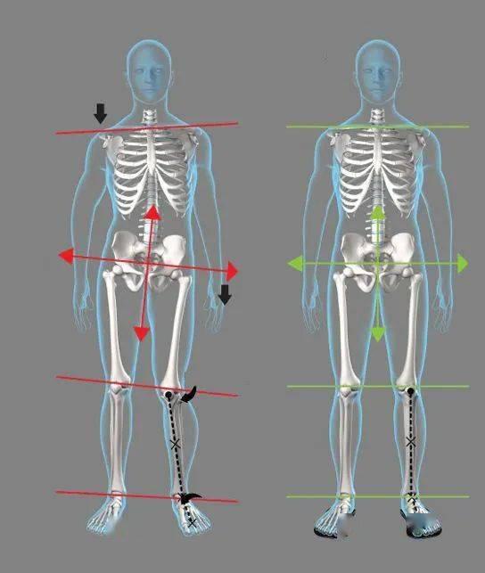 练瑜伽,稳定骨盆很重要!6个简单的动作稳定骨盆,一定要常练!_问题