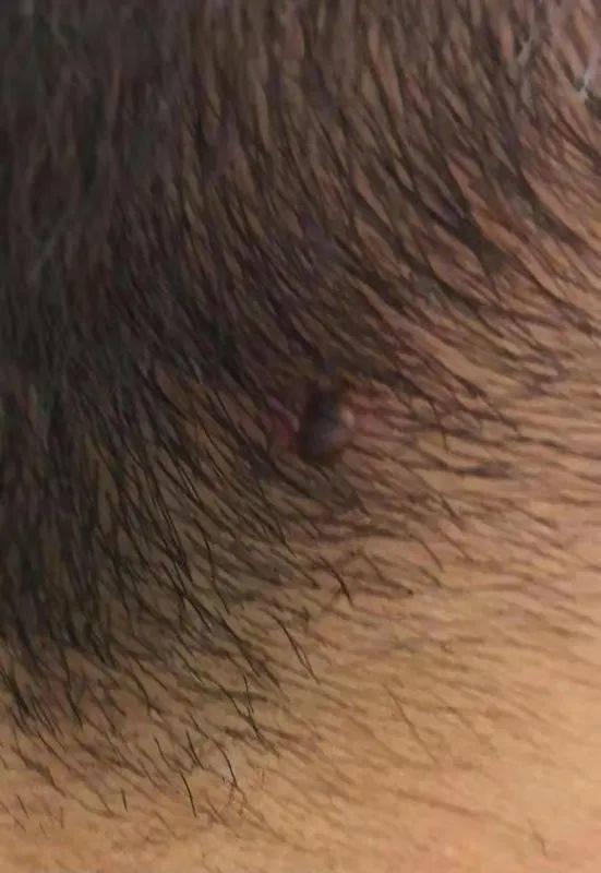 """警惕!3岁男童后脑勺疼 结果发现一个""""黑点""""!严重可致命...-家庭网"""