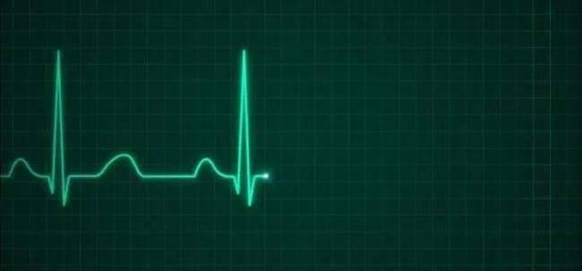 塑心學堂   「簡單」心電圖背後的不簡單